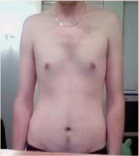 Skinnyfat Beispiel Mann